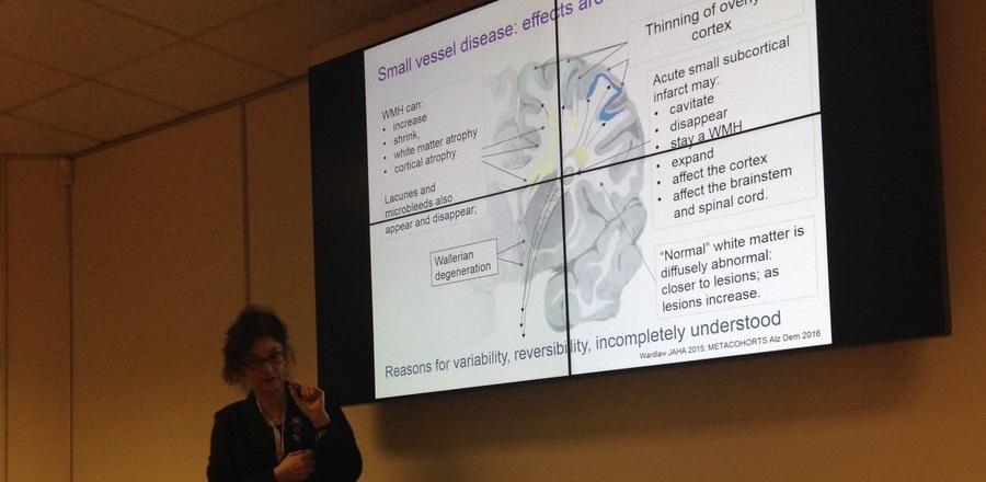 Professor Joanna Wardlaw giving a presentation