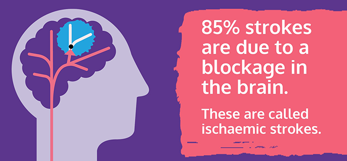 Infographic with text. 85% strokes are due to a blockage in the brain.These are called ischaemic strokes.