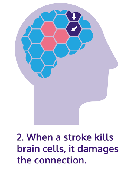 Illustration of damaged brain cell connection with text: when a stroke kills brain cells, it damages the connection.
