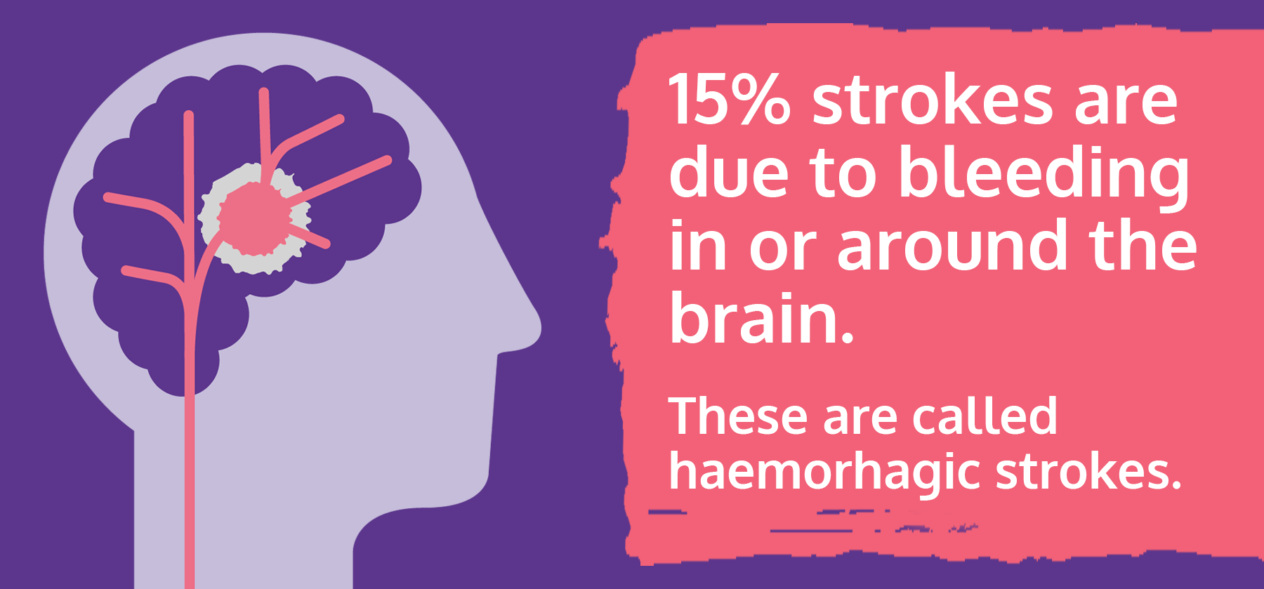 Graphic representation of haemorrhagic stroke by the Stroke Association