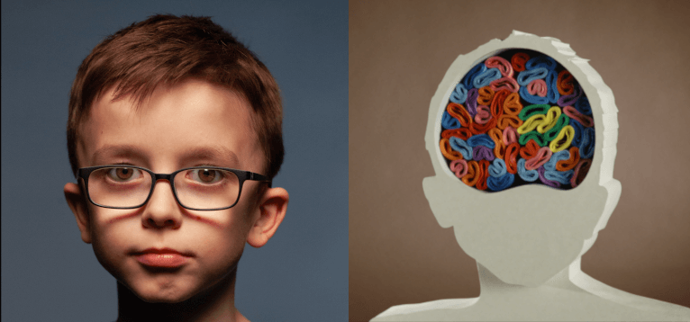 Portrait of Max side by side with a visualization of the brain